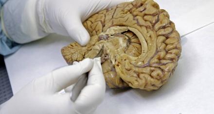 Identifican nuevo tipo de demencia confundido hasta el momento con el alzhéimer