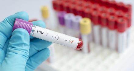 En Suiza podrán comprar el test del HIV en farmacias
