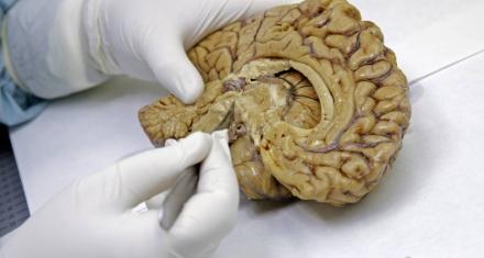Científicos españoles descubrieron una forma de frenar el cáncer cerebral más letal