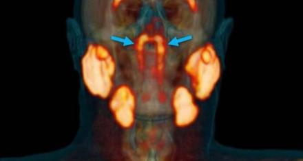 Descubrieron nuevas glándulas salivales desconocidas en el cuerpo humano hasta ahora
