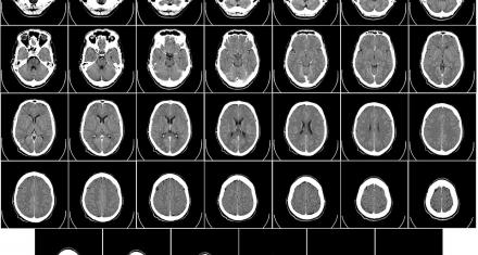 Descubren que una proteína tendría un efecto protector ante los tumores cerebrales más agresivos