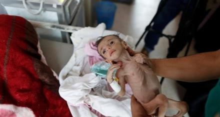 Yemen: más de 5 millones de niños amenazados por el hambre