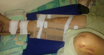 """En Chaco como no había insumos en el hospital """"enyesaron"""" a una mujer con cintas y cartones"""