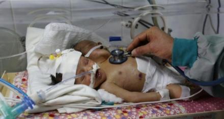 Yemen: Mueren siameses íconos de la mayor crisis humanitaria del planeta