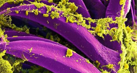China: Declaran en Mongolia alerta preventiva por un caso de peste bubónica