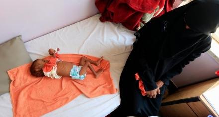 ONU alerta que la hambruna en Yemen es una de las peores que se recuerdan