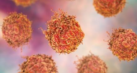 Innovador tratamiento que puede combatir el cáncer de próstata